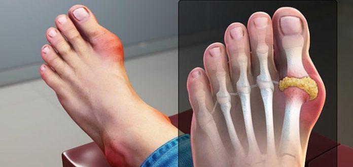 nguyên nhân bệnh gout