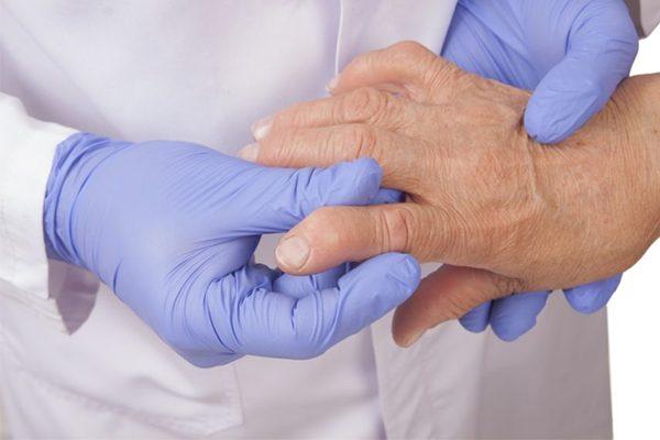 Biến chứng nguy hiểm của bệnh viêm xương khớp mà ít ai ngờ tới
