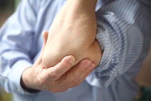 Nguyên nhân viêm thấp khớp