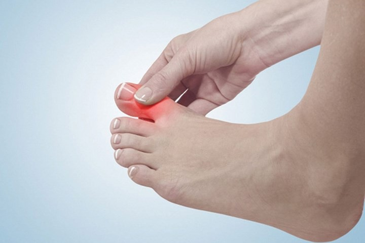 Thoái hóa khớp gây nên tình trạng sưng đau, tấy đỏ tại các khớp xương