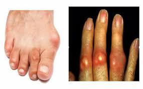 5 triệu chứng của bệnh gout không nên bỏ qua