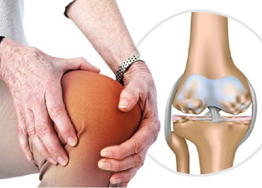 Bị đau khớp gối nên uống thuốc gì nhanh khỏi?